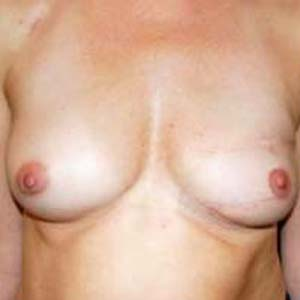 """Efter """"Bröstrekonstruktion. Genomförd operation med transplantation från latissumus dorsi samt bröstimplantat."""""""