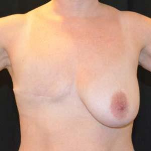 """Före """"Bröstrekonstruktion. Kvinna som genomgått mastektomi och sedan byggt upp ett nytt bröst med hjälp av en diep lambå."""