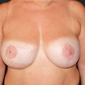 """Efter """"Bröstrekonstruktion. Kvinna som genomgått mastektomi och sedan byggt upp ett nytt bröst med hjälp av en diep lambå."""