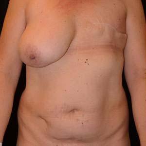 """Före """"Bröstrekonstruktion. Patient har genomgått en bröstrekonstruktion med lambå från buken. Sen lyft av högerbröst för skapa bättre symmetri mellan..."""""""