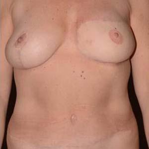 """Efter """"Bröstrekonstruktion. Patient har genomgått en bröstrekonstruktion med lambå från buken. Sen lyft av högerbröst för skapa bättre symmetri mellan..."""""""