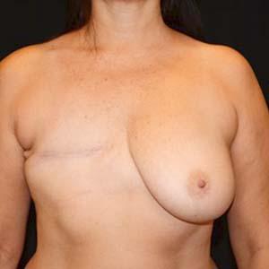 """Före """"Bröstrekonstruktion och fettransplantation samt ärrkorrigering, Kvinna 56 år, 72 kg, 172 cm, har inte fött några barn."""""""