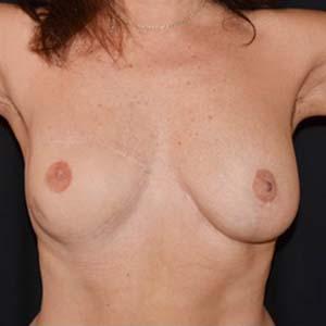 """Efter """"Bröstrekonstruktion och fettransplantation samt ärrkorrigering, Kvinna 56 år, 72 kg, 172 cm, har inte fött några barn."""""""