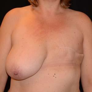 Före Bröstrekonstruktion, kvinna 50 år, 74 kg, 177 cm, har fött 2 barn.