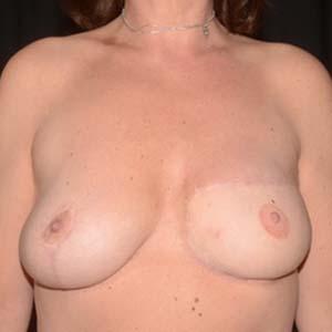Efter Bröstrekonstruktion, kvinna 50 år, 74 kg, 177 cm, har fött 2 barn.