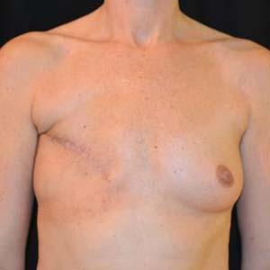 """Före """"Bröstrekonstruktion. Bröstrekonstruktion höger sidan med latissimus lambå. Höger bröst implantat MF 525, vänster bröst implantat MM 360."""""""