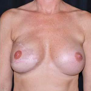"""Efter """"Bröstrekonstruktion. Bröstrekonstruktion höger sidan med latissimus lambå. Höger bröst implantat MF 525, vänster bröst implantat MM 360."""""""