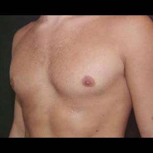 Efter Gynekomasti