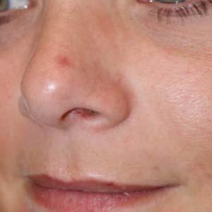 Före Laserbehandling av kärl på näsan. En behandling med V Beam har utförts