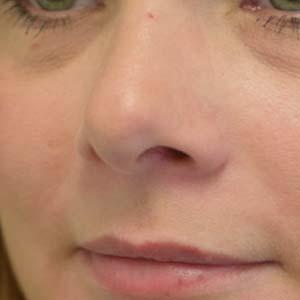 Efter Laserbehandling av kärl på näsan. En behandling med V Beam har utförts