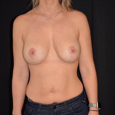 Kvinna efter bröstförstoring
