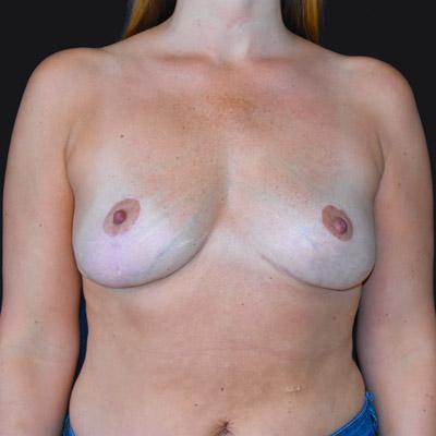Efter bröstlyft med uttag av implantat
