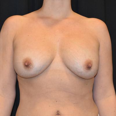 Före bröstlyft med uttag av implantat