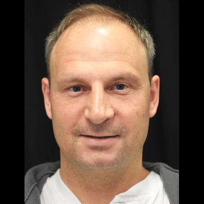 Man före hårtransplantation