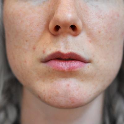 Läppar före injektionsbehandling