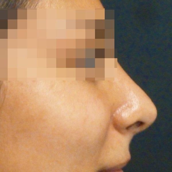 Efter näsplastik