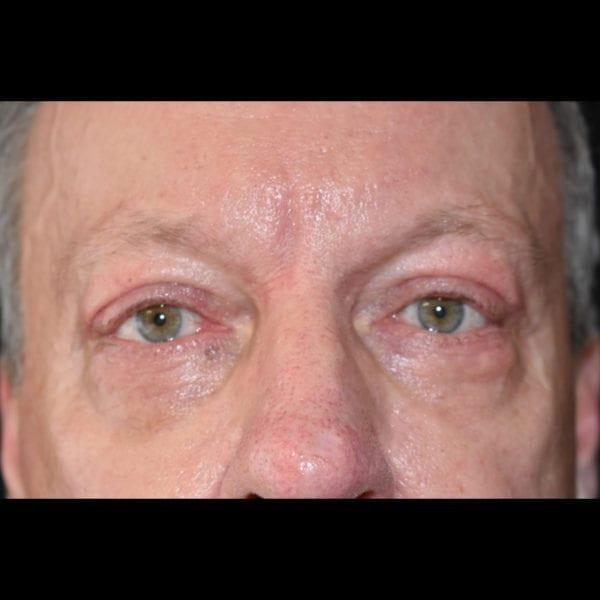 Efter Ögonlockskirurgi