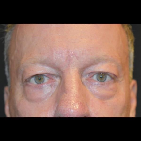 Före Ögonlockskirurgi