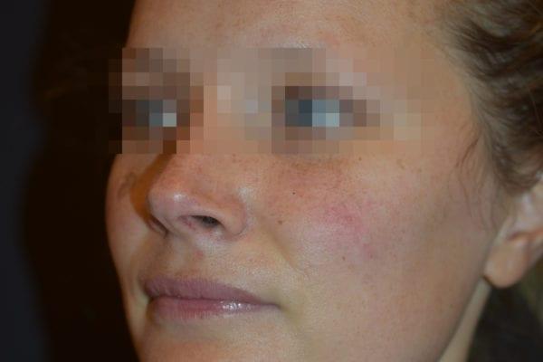 Patient före IPL av ansikte