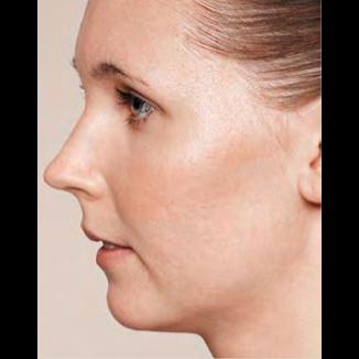 Kvinna efter Skinbooster