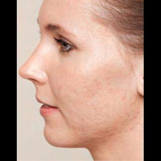 Förebild Skinbooster