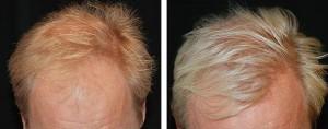 Före- Efter hårtransplantation