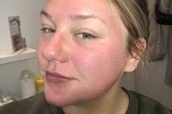 Kajsa Linnea efter en Aquagold behandling