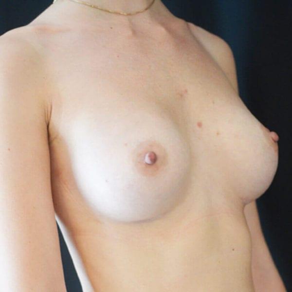 Byst snett framifrån innan bröstförstoring 133159