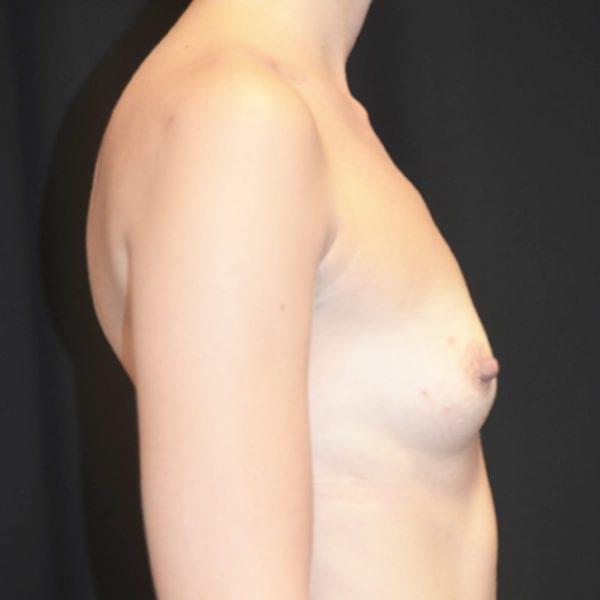 Byst från sidan innan bröstförstoring 133159