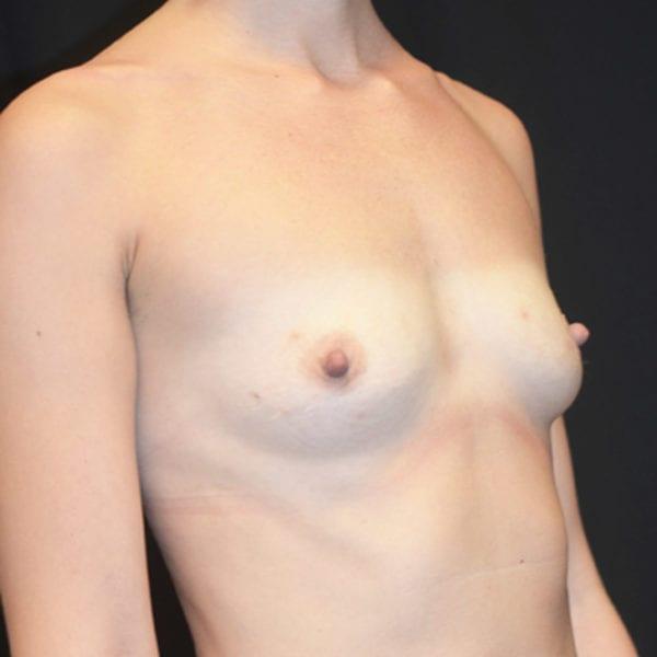 Byst snett från sidan innan bröstförstoring 133159