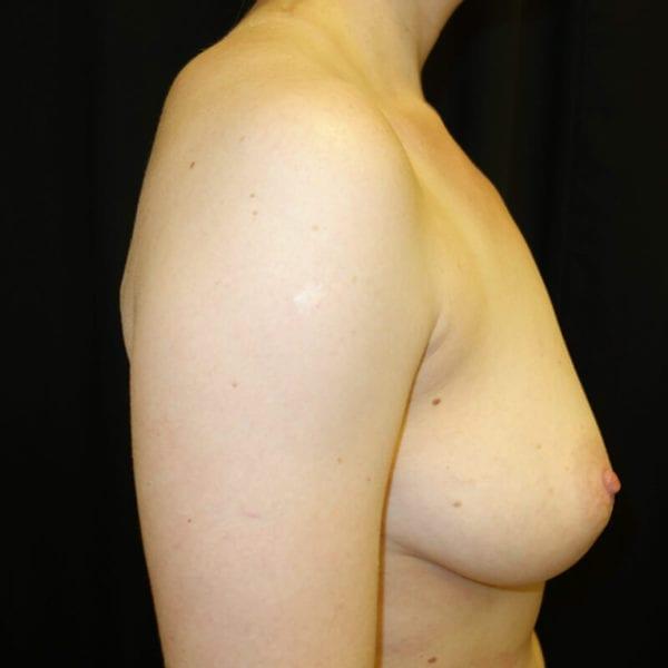 Byst innan bröstförstoring från sidan 168498