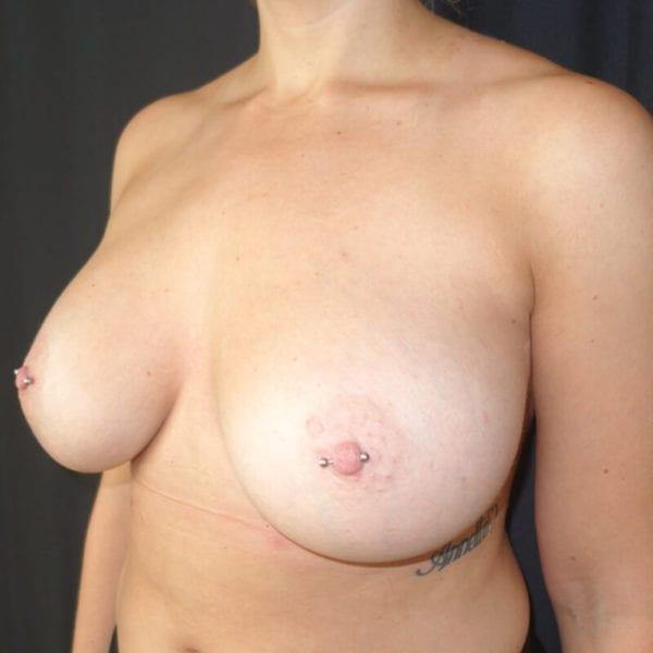 Byst snett från sidan efter bröstförstoring 168498