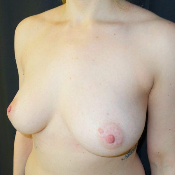 Byst snett från sidan innan bröstförstoring 168498