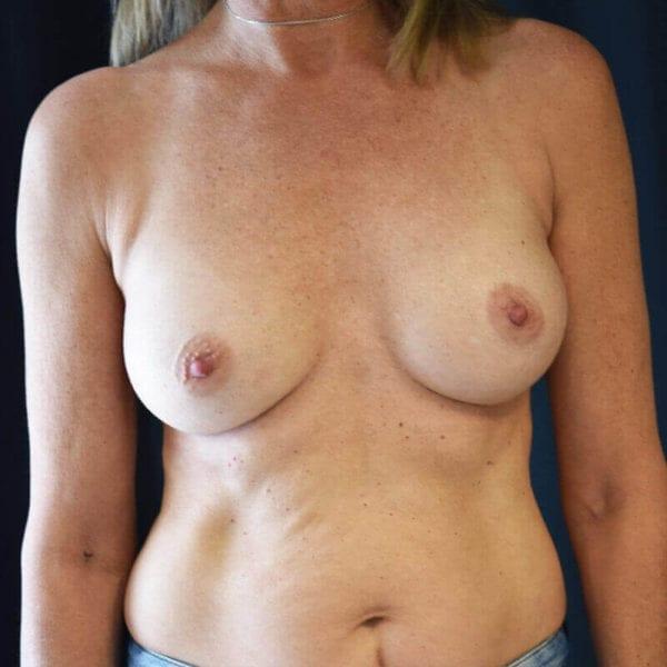 Byst fram efter bröstförstoring 169905