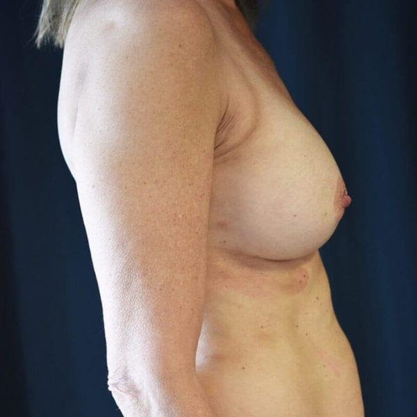 Byst från sidan efter bröstförstoring 169905