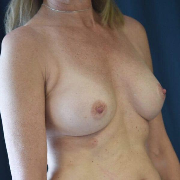 Byst snett från sidan efter bröstförstoring 169905