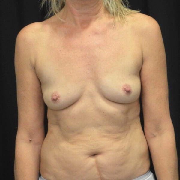 Byst fram före bröstförstoring 169905