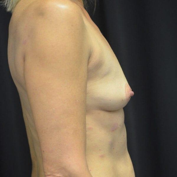 Byst från sidan före bröstförstoring 169905
