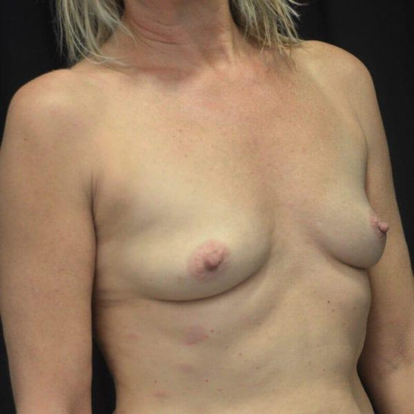 Byst snett framifrån före bröstförstoring 169905