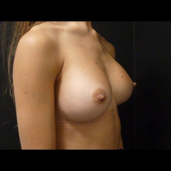 Byst från sidan efter bröstförstoring 172347