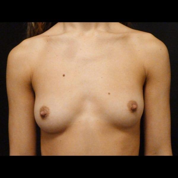 Byst framifrån innan bröstförstoring 172347