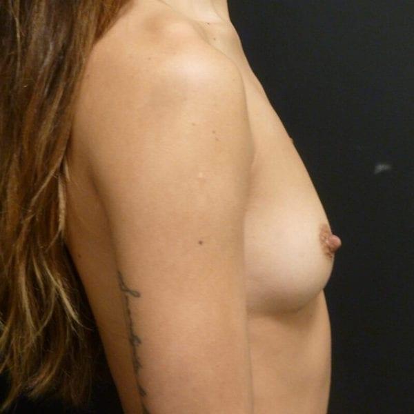 Byst från sidan innan bröstförstoring 172347