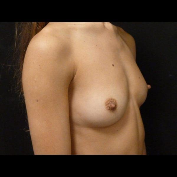 Byst från snett från sidan innan bröstförstoring 172347
