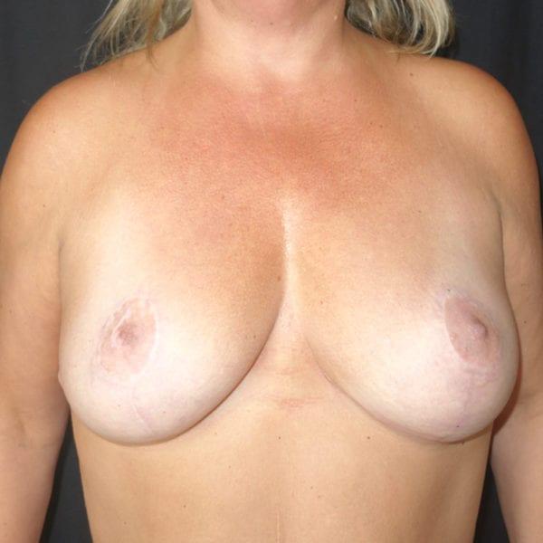 Byst framifrån efter bröstlyft 174631