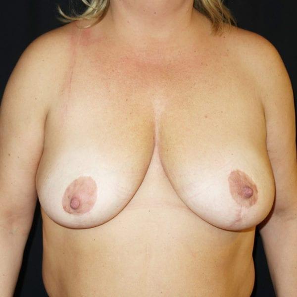 Byst innan bröstlyft framifrån 174631