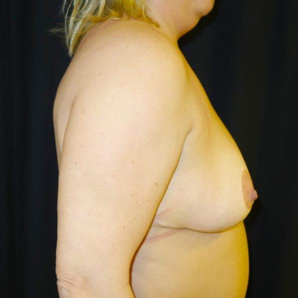Byst från sidan innan bröstlyft 174631
