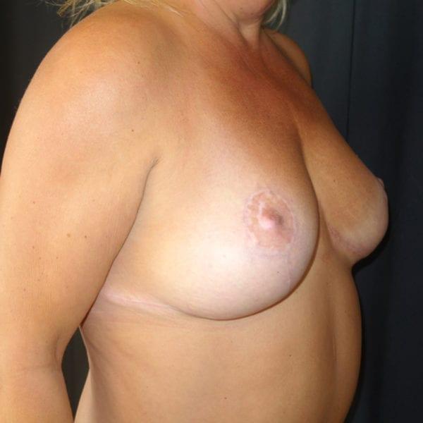 Byst efter bröstlyft snett framifrån 174631