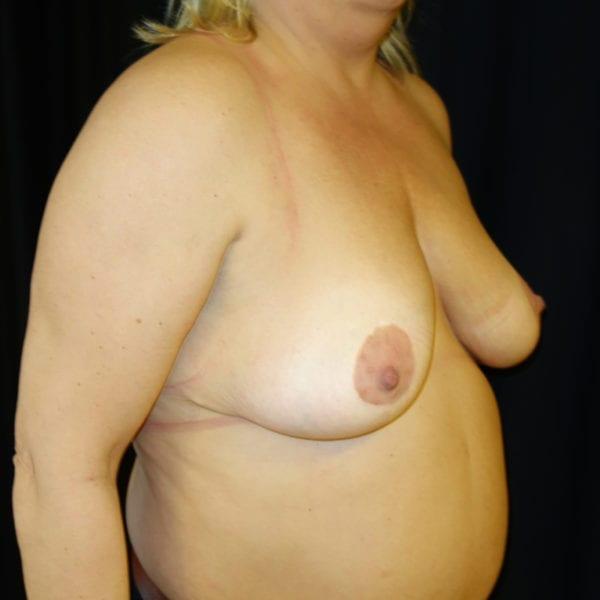 Byst snett framifrån innan bröstlyft 174631