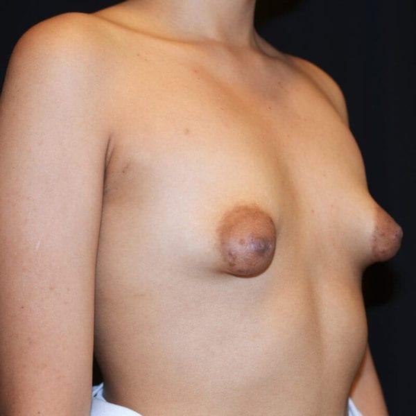 Byst snett från sidan före bröstförstoring och vårtgårdsplastik 176027