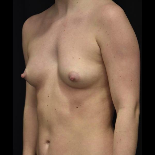 Före bröstförstoring